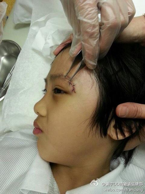 费曼眼睛受伤未痊愈