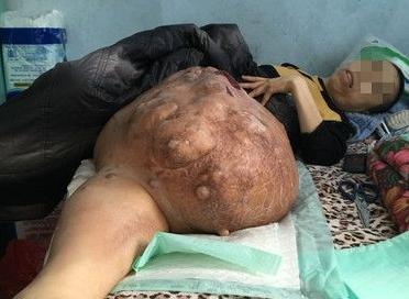 张世范的腿上长了一个大瘤子。