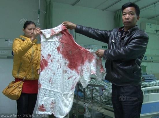 深圳女孩因分手被男友捅10刀生命垂危
