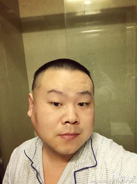 岳云鹏脸部良性瘤