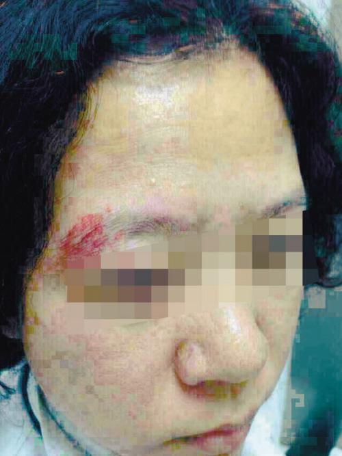 患者加塞儿被拒 打伤女大夫眼眶