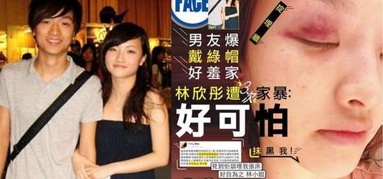 林欣彤遭三次家暴