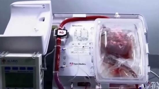 图为器官保健系统