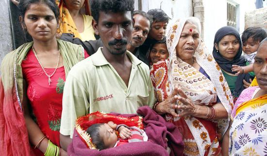 """印度一妇女诞下""""象鼻""""女婴 被当神膜拜(图)"""
