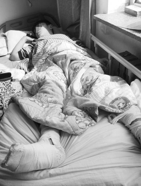 小军目前还躺在病床上