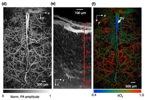 这些是快速功能光声显微镜拍摄到的小鼠大脑的图像。左图是投射到x-y轴二维平面上的完整颅骨内的脉管系统。中图是投射到x-z轴二维平面上的典型的大脑脉管系统增强成像图像。右图是小鼠大脑血红蛋白氧饱和的光声显微镜拍摄的图像,是通过两束激光,利用基于单波长和脉冲宽度的新方法拍摄到的。