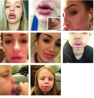 香肠嘴-女孩用杯子丰唇 致嘴唇充血肿胀