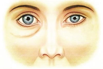 左半边脸眼袋很小,给人感觉眯着笑。示意图    右半边脸眼袋较大,眼睛常流泪。