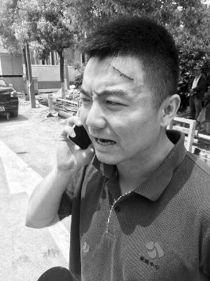 江苏电视台记者毛俊额头和前胸都有伤痕 当事人供图