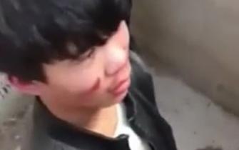 学生公厕内遭围殴被按进粪坑
