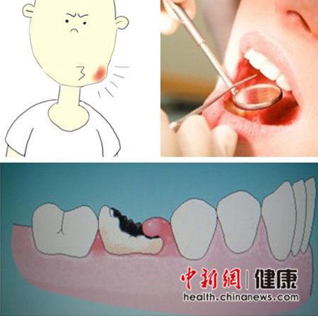 打工仔牙疼一周未去医院身亡