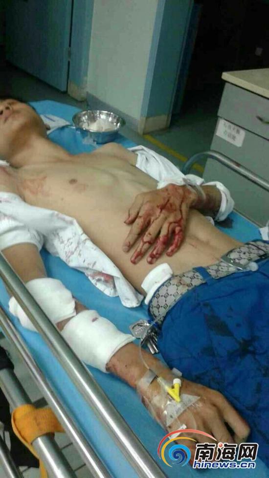 躺在海口武警总队医院外科病床上的小陈。南国都市报记者石祖波翻拍