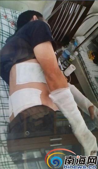 病床上的吴某某正在接受治疗。图片/吴某某提供