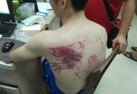 据悉目前伤者暂无生命危险,初步诊断为脑震荡。