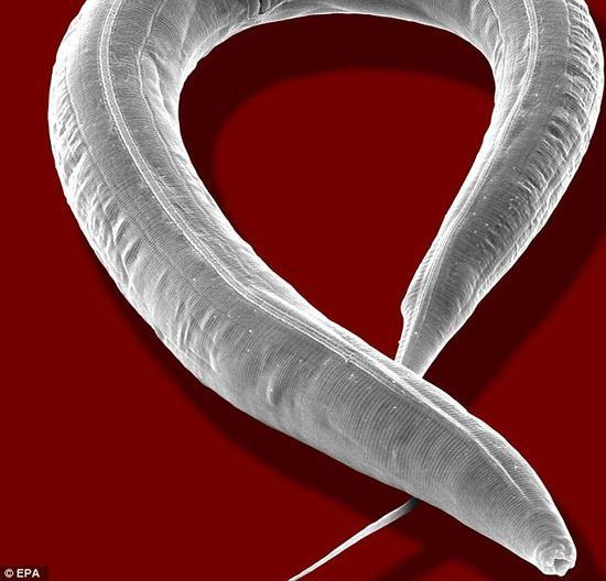 研究人员对秀丽隐杆线虫进行了测试,让它们在闻到某种气味时做出特定的反应,并发现在冷冻之后,它们仍然保留着这段记忆。