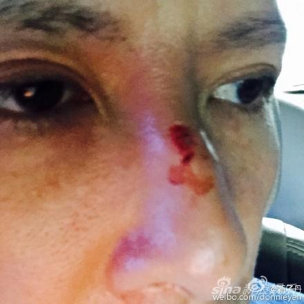 甄子丹拍《叶问3》鼻子受伤