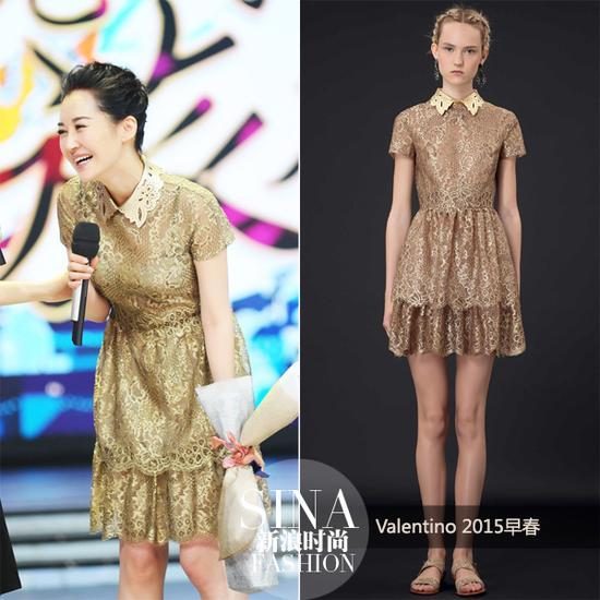 许晴穿金色蕾丝短裙