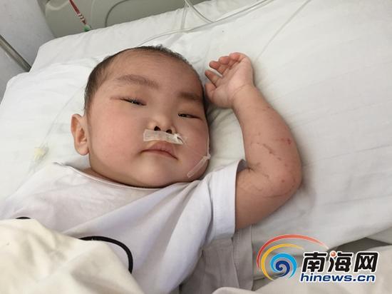 """小昌宇躺床上,喊着""""妈妈""""想吃东西。"""