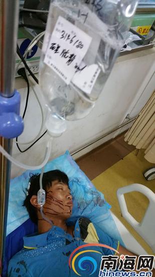 这次事件中一名工人受伤,目前还在昏迷中。南国都市报记者徐培培摄