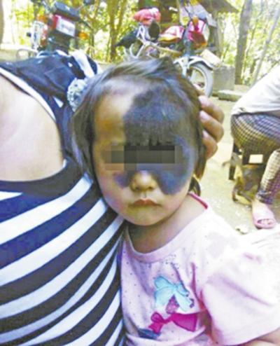 小若的面部曾被天生的黑色素痣遮住(资料图)