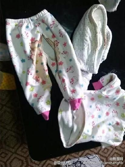 女婴的外裤
