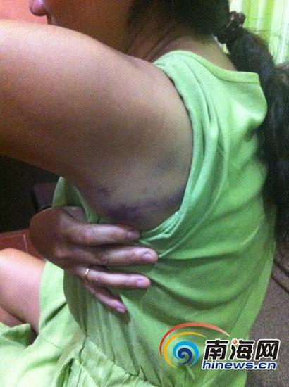 阿莲身体多处被打成瘀青。