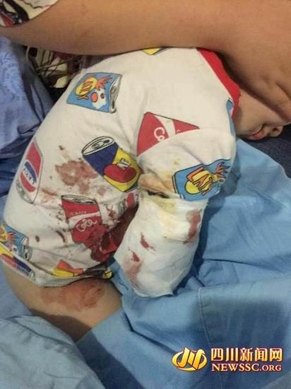 男孩右手手肘被包扎得严严实实,衣服上有明显血迹