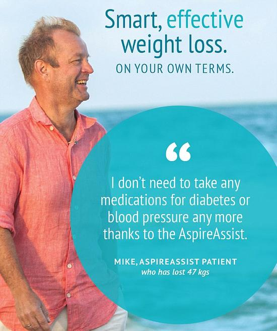 """借助""""AspireAssist""""减肥仪减掉47公斤的肥胖症患者迈克。"""