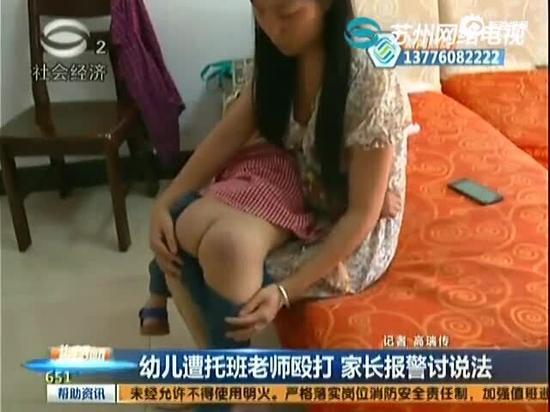 幼儿托班遭老师殴打 家长报警讨说法