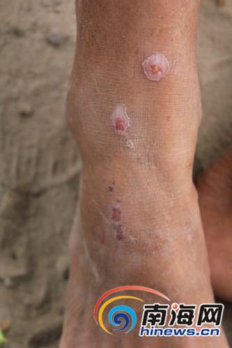 村民被蚂蚁咬伤的伤疤还清晰可见。