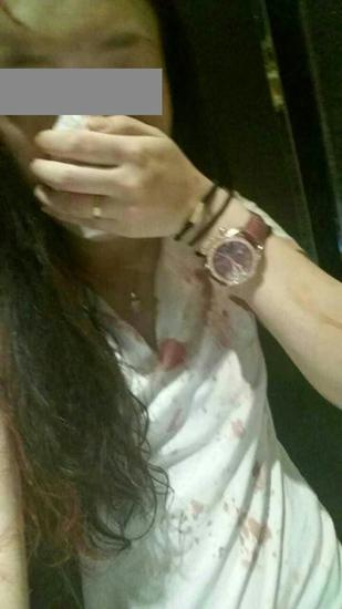 小琳被打后,上衣满是血迹(当事人供图)