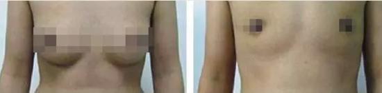 手术前后对比
