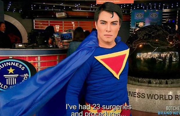 男子整容23次成现实版超人