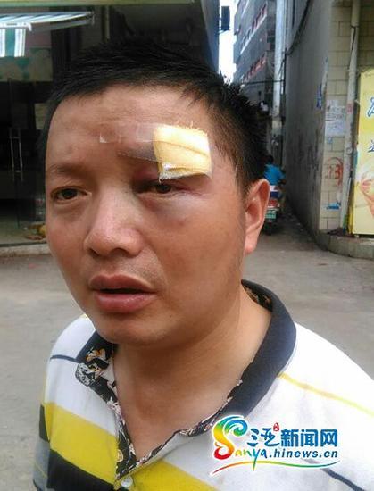 刘先生称莫名被打。(三亚新闻网记者沙晓峰摄)