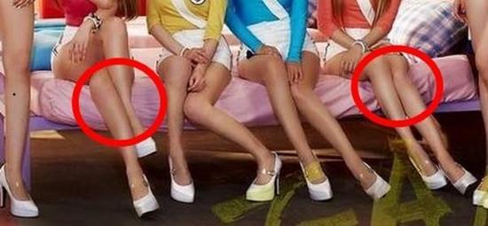 腿部已严重变形