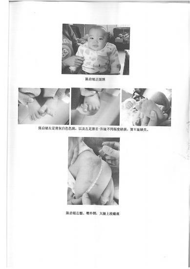 治疗遗留:小名左髂、臀外侧、大腿上段瘢痕形成;左足第二、三、四趾不同程度缺损,第五趾缺失。