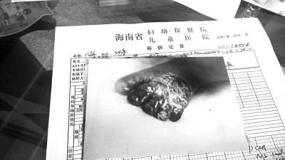 """术后:小名全身硬肿明显,臀部左下肢大片红肿,见大小不等水疱,左足第2-5趾有青紫,以小趾明显,严重,为完全青紫等情况,诊断为""""II度烫伤,右足趾挤压伤""""。"""