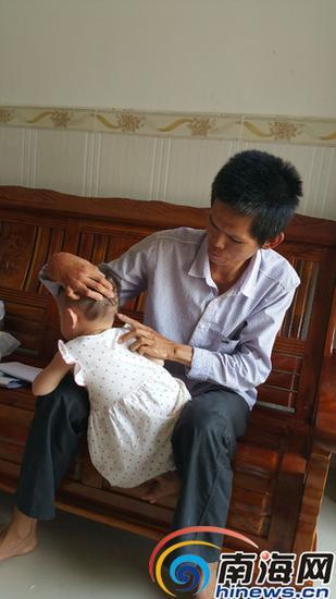 莫祥山很担心孙女萱萱头部的肿块。