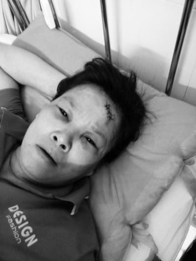 李女士在医院接受治疗