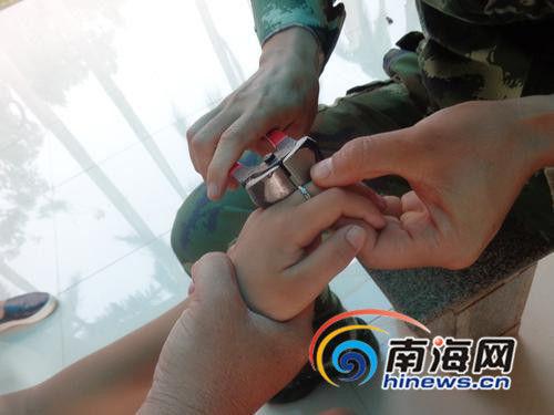 消防人员将卡在男孩手指上的戒指取下
