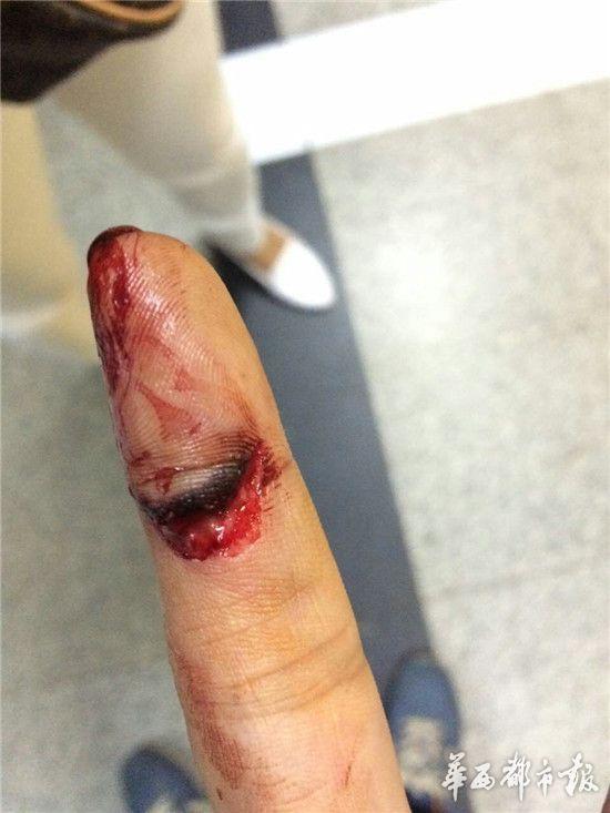 张伟被咬伤的手指