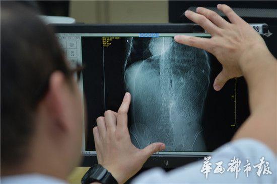 医生展示王涛的X光片