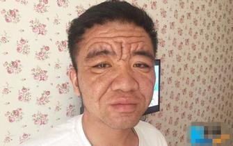 """重庆30岁小伙长出一张""""老脸"""""""