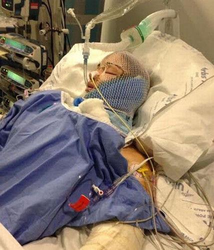 因交通意外撞到一棵树,凯莉不但昏迷长达3星期之久,连右脚最终也因严重受伤需截肢