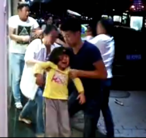 女孩面部摔伤流血。