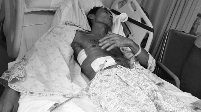 伤者符锐躺在病床上