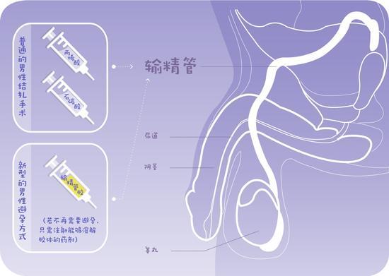 经皮输精管注射粘堵法和输精管胶法原理图(绘图 肖媛)