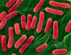 图1 典型肠道细菌 (1)双歧杆菌,(2)乳酸杆菌,(3)肠球菌,(4)大肠杆菌