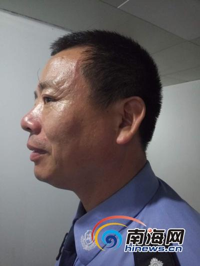 海口美兰交警大队大队长刘建红被打伤的脸尚未消肿,脖子上仍有一些被抓伤的痕迹。(南海网记者周静泊摄)