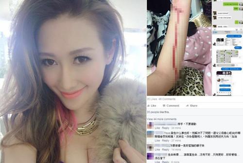 Yoyo不少朋友留言劝阻她自杀。(图:香港《星岛日报》网站)